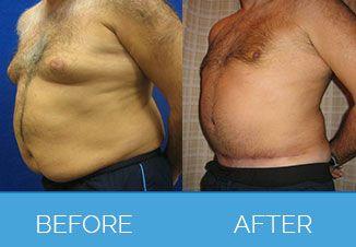 Male Tummy Tuck1