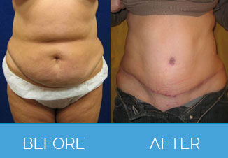 Tummy Tuck Before After 1