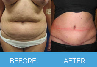 Tummy Tuck Before After 2