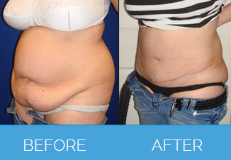 Tummy Tuck Before After 3