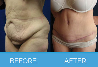 Tummy Tuck Before After 4