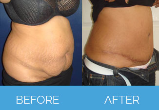 Tummy Tuck Before After 5