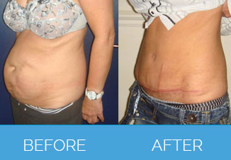 Tummy Tuck Before After 6