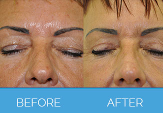 Upper Eyelid Surgery1