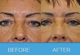 Upper Eyelid Surgery2