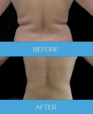Vaser-Liposuction1.2