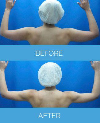 Vaser-Liposuction1.3