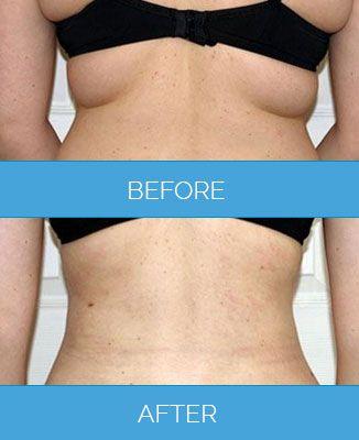 Vaser-Liposuction1.4
