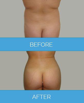 Vaser-Liposuction1.6
