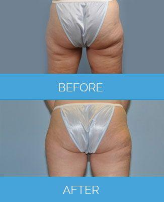 Vaser-Liposuction1.7