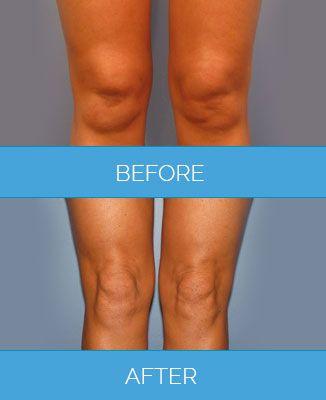Vaser-Liposuction1.8
