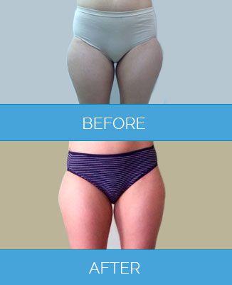 Vaser-Liposuction1.9