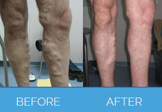 Laser Varicose Vein Treatment