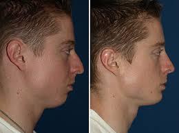 Chin implant