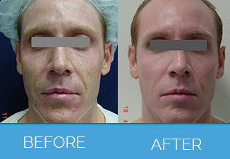 chemical peel2