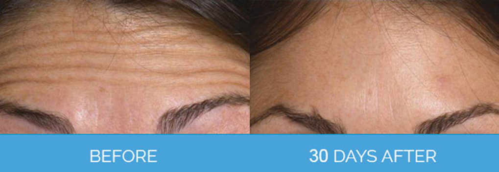 Wrinkle Smoothing before & after1