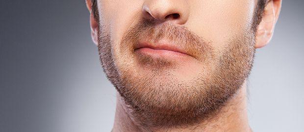 beard/Moustache transplant