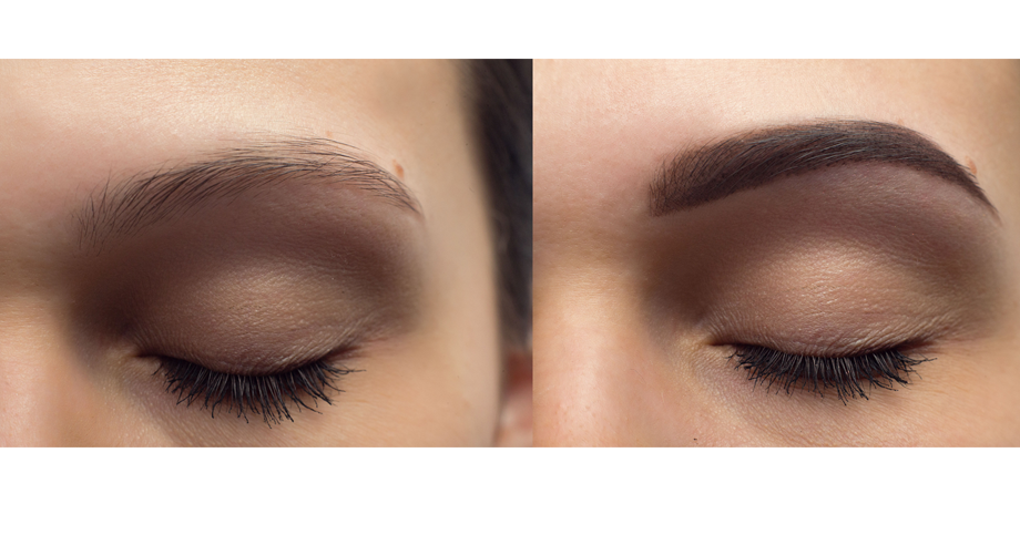 eyebrow restoration