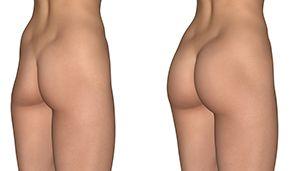 liposuction to remove stubborn fat