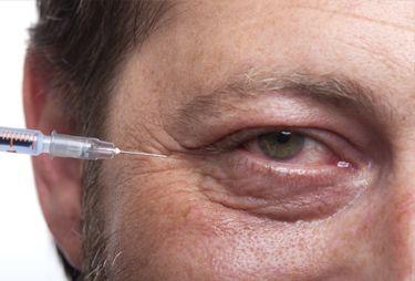 Brotox treatment