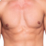 Male Tummy Tuck