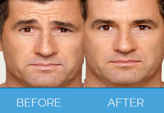 Brotox treatment before & after