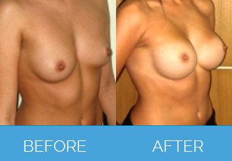 Breast Enlargement Procedure Before and After