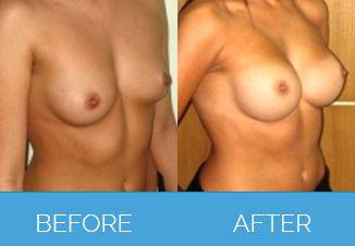 Breast Enlargement Surgery4