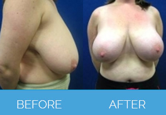 Breast Uplift Before and After - Mammoplasty