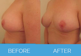 Breast Uplift Surgery Before and After