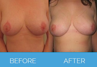 Breast Uplift Procedure - Before and After