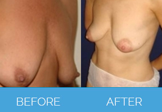 Breast Uplift Procedure