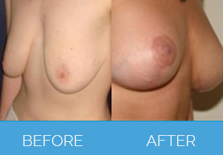 before and after breast uplift