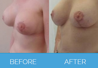 Breast Uplift before and after