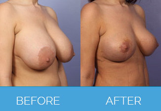 Nipple Correction Surgery Before and After Pics