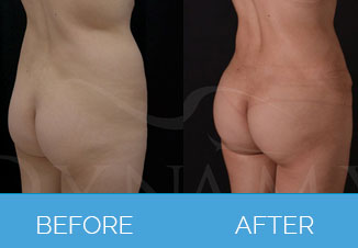 4D Vaser Liposuction4