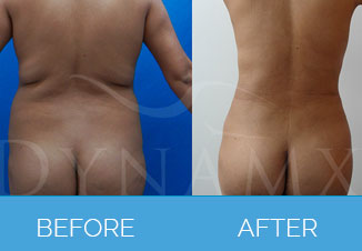4D Vaser Liposuction1