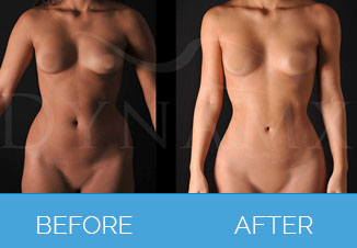 4D Vaser Liposuction2