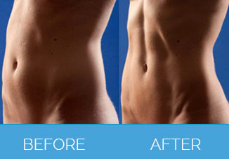 4D Vaser Liposuction3