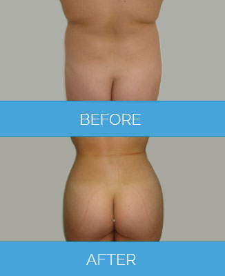 Radio Frequency Body Contouring treatment before after