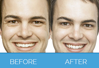 Before and After Male Dermal Fillers