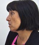 Karen Kormoss - skin tags removal treatment
