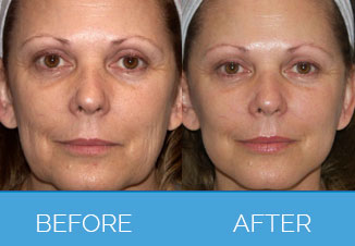 Silhouette Facelift before & after