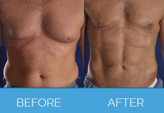 Male Liposuction5