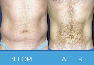 Male Liposuction4