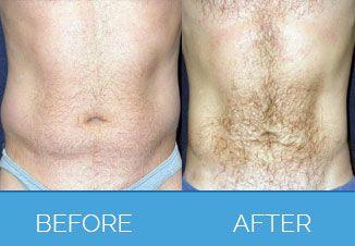 Male Liposuction4