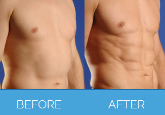 Male Liposuction3