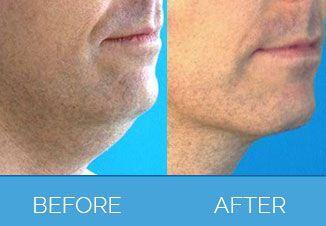 Vaser Liposuction before & after