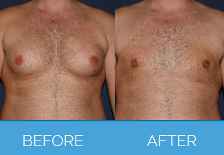 Male Liposuction6