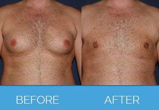 Vaser Liposuction 3